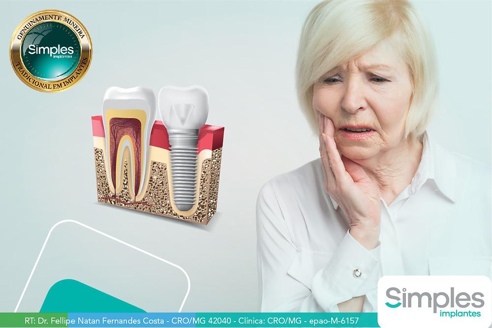 O que pode causar a perda de um implante?