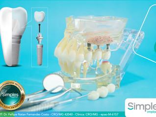 Benefícios da tecnologia nos implantes dentários