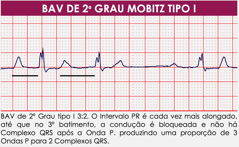 Mobitz I.png