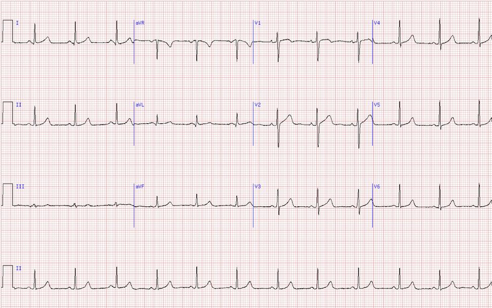 ECG normal.png