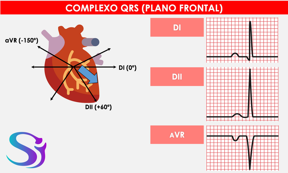 QRS frontal.png