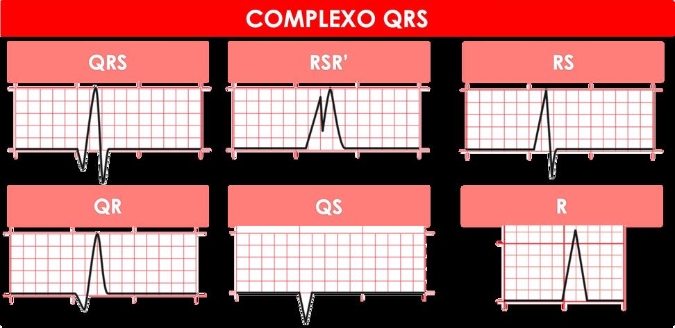Complexo QRS.png