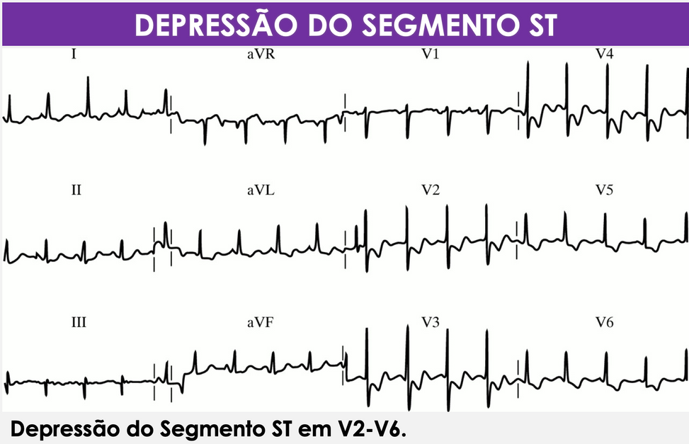 Depressão_de_ST.png