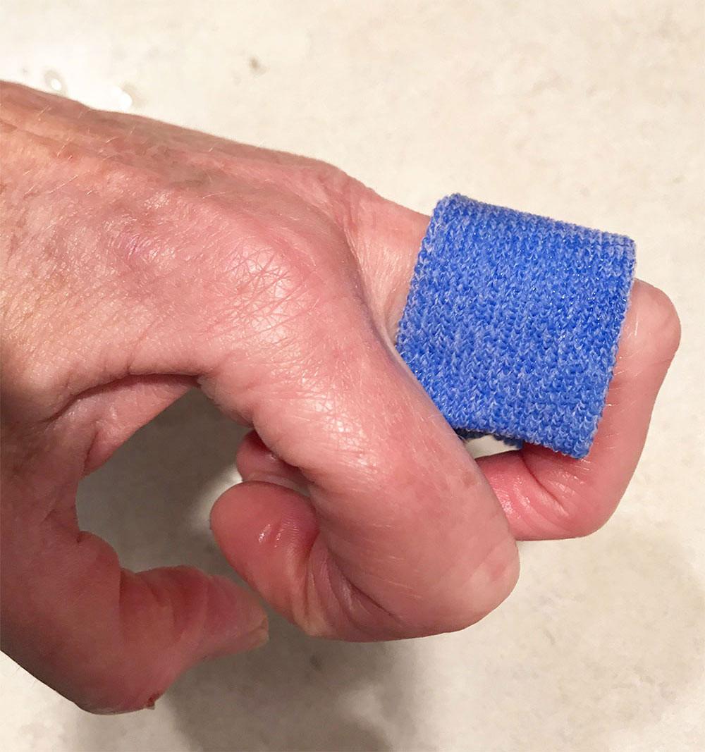 Orficast More Orthese. Ergotherapie und Handtherapie