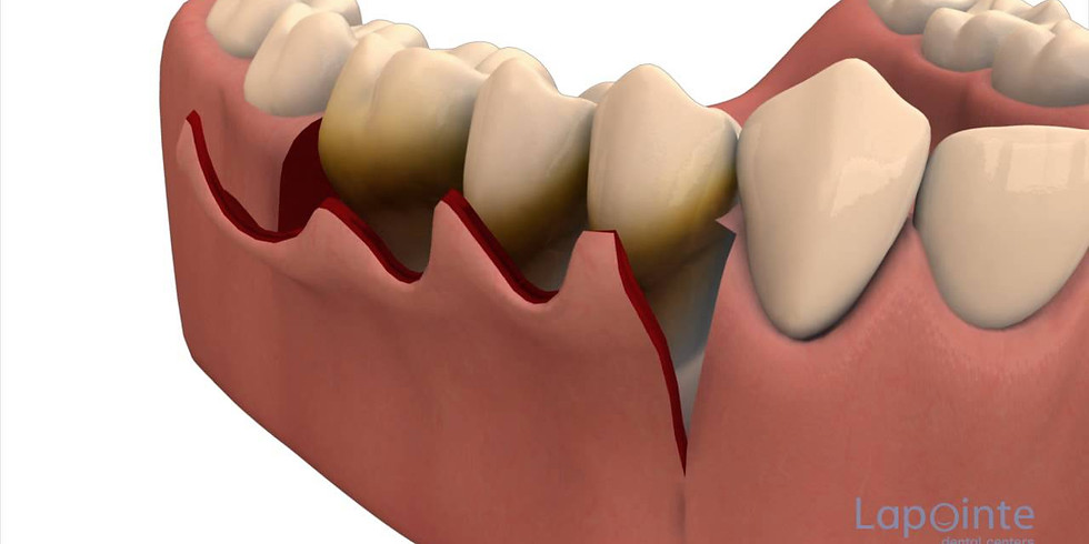 PERIODONTAL THERAPY – A BRIEF OVERVIEW- HANDS ON WORKSHOP ON SHEEP MANDIBLE