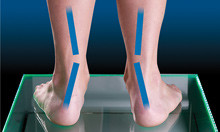 Pronation VS Overpronation