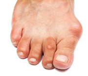 About Bunions