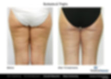 Cellulite Reduction Plano TX