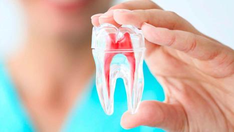 oraldoctor-endodontia-min.jpg
