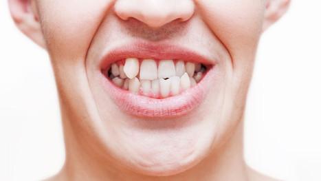 dente-encavalado.jpg