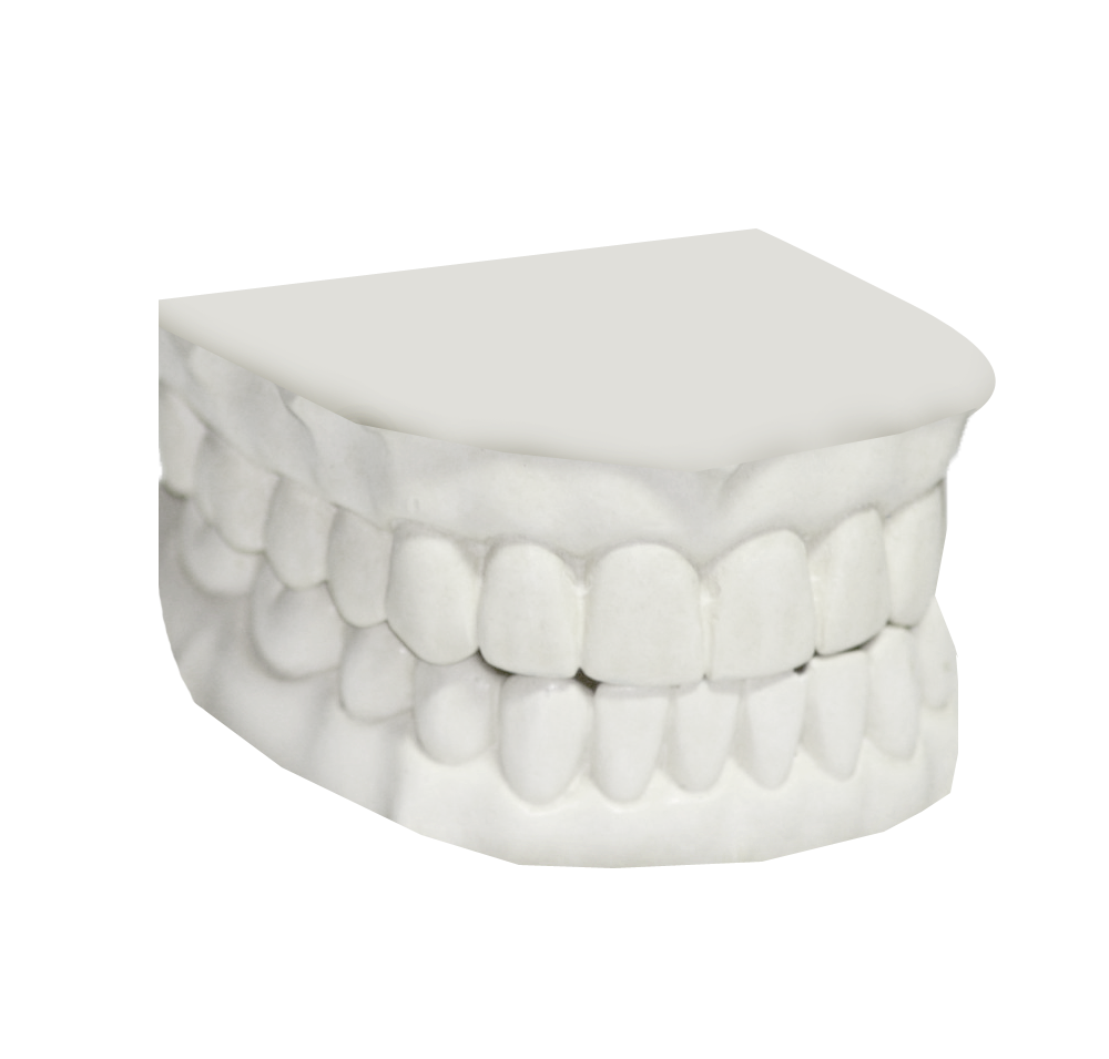JustRetainers | Affordbility After Braces
