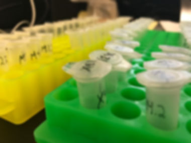 Samples prepared for RNA expression analysis (PCR)