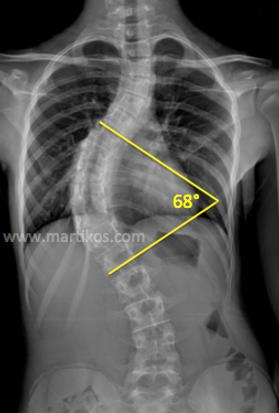 Scoliosi: misurazione radiografia, angolo ci Cobb