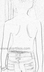 Segni di scoliosi: asimmetria fianchi, spalle, scapole, bacino, disassamento del tronco