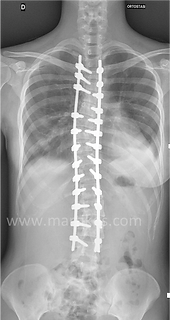 Scoliosi toraco-lombare: correzione artrodesi posteriore strumentata toraco-lombare