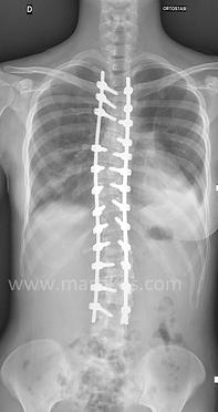 Scoliosi idiopatica - Correzione della scoliosi ed artrodesi posteriore strumentata toraco-lombare