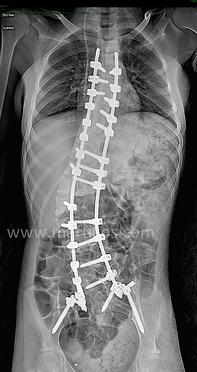 Correzione ed artrodesi posteriore strumentata estesa fino al bacino