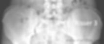 Scoliosi, segno di Risser: ossificazione cartilagine cresta iliaca