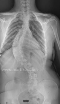 Scoliosi idiopatica con esordio in età adolescenziale