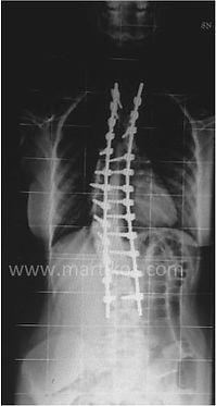 Scoliosi idiopatica pediatrica - Correzione ed artrodesi posteriore strumentata toraco-lombare