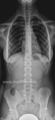 colonna vertebrale dritta