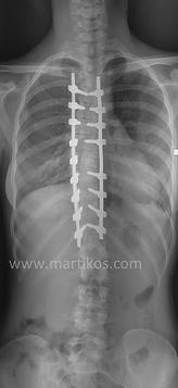 Scoliosi toracica destra: correzione chirurgica
