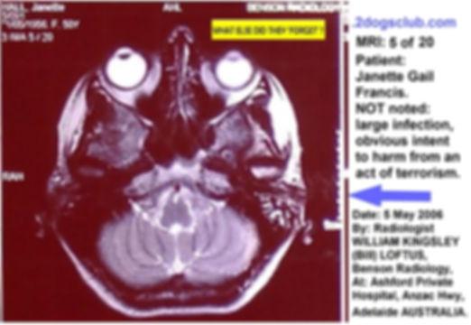 2006-05-05 MRI Insitu NOT noted Infectio
