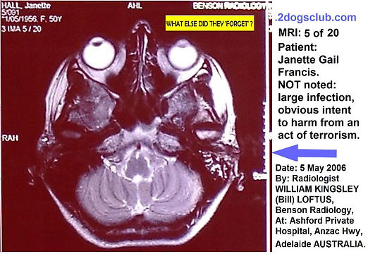 2006-05-05 MRI Insitu NOT noted Infectio