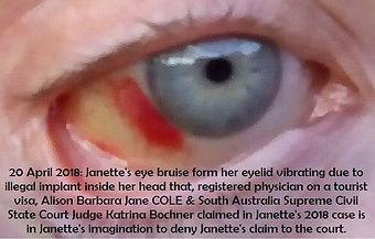 2018-04-20 Janette Right Eye Vibration B