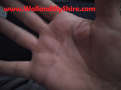 11 Pulsing 1990s Palm Implants & Disloca