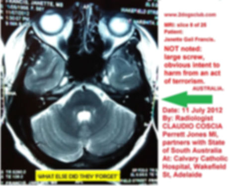 2012-07-11 MRI Insitu NOT noted Screw Pe