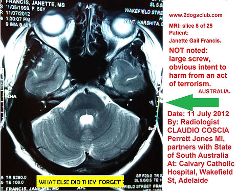 2012-07-11 MRI Insitu NOT noted Screw Pe