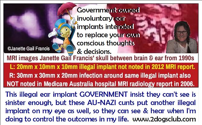 Card illegal SPEAKING EAR implant inside
