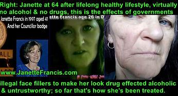 Illegal Secret Face Fillers between 1982
