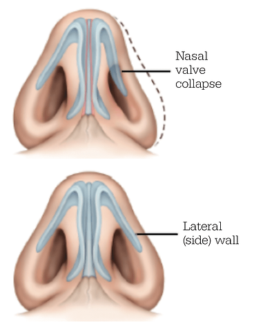 Nasal Valve Collaspe.png