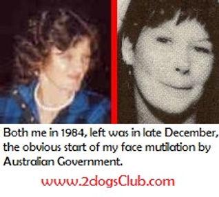 1984 Dec obvious start of my face mutila
