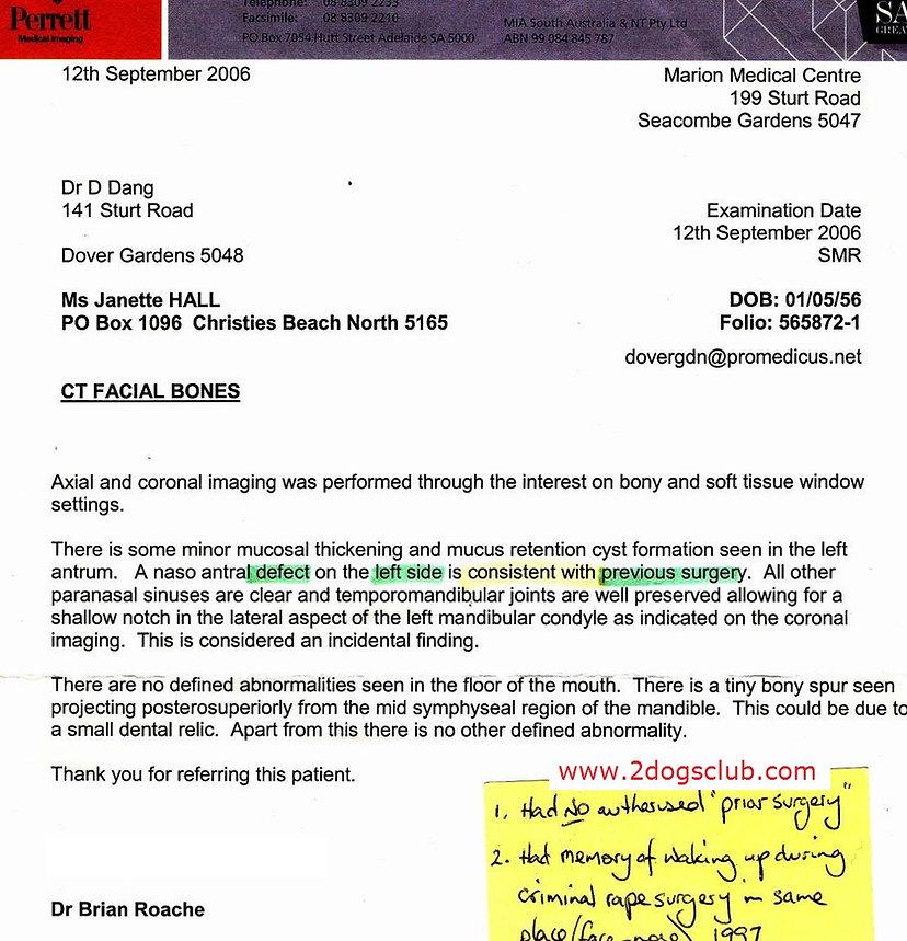 2006 Brian Roache Perrett illegal Surger