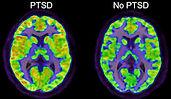 PTSD Brain.jpg
