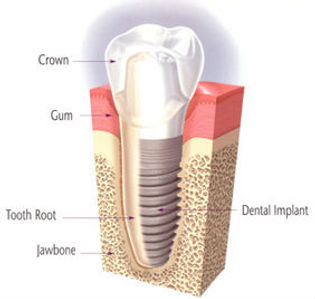 Dental Implant diagram.jpg
