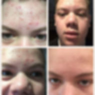 Acne before and after Nimue Treatments