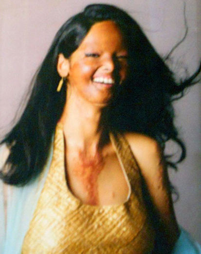 acid-attack-victim.jpg