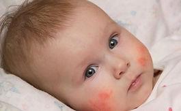 dermatit-hastasi-bebekdpı.jpg