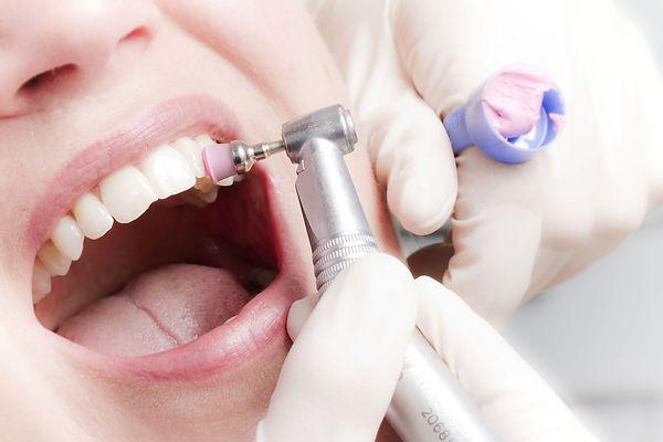 полирование зубов.jpg