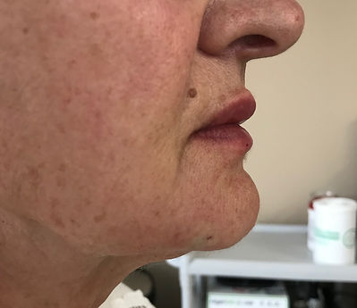 Jaw Line Definition After Photo