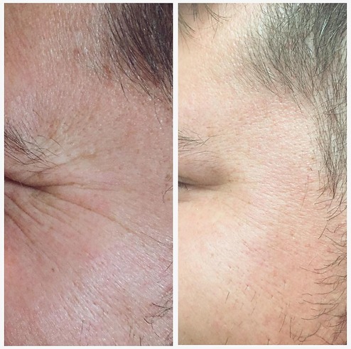 Male Botox Before and Afer Crows Feet