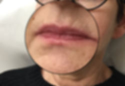 Lip Filler Older Woman Before Photo