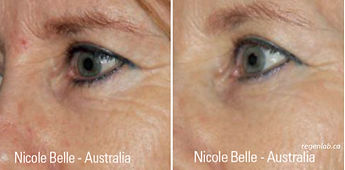PRP Vampire Procedure Dark Circles Before ad After