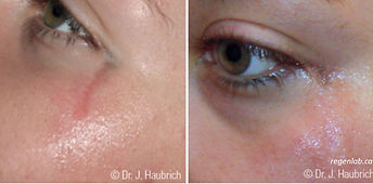 PRP Vampire Procedure Acne Scaring Before ad After