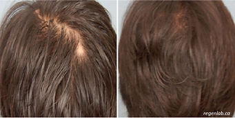 PRP Vampire Procedure Hair Loss Before ad After