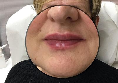 Lip Filler Older Woman After Photo